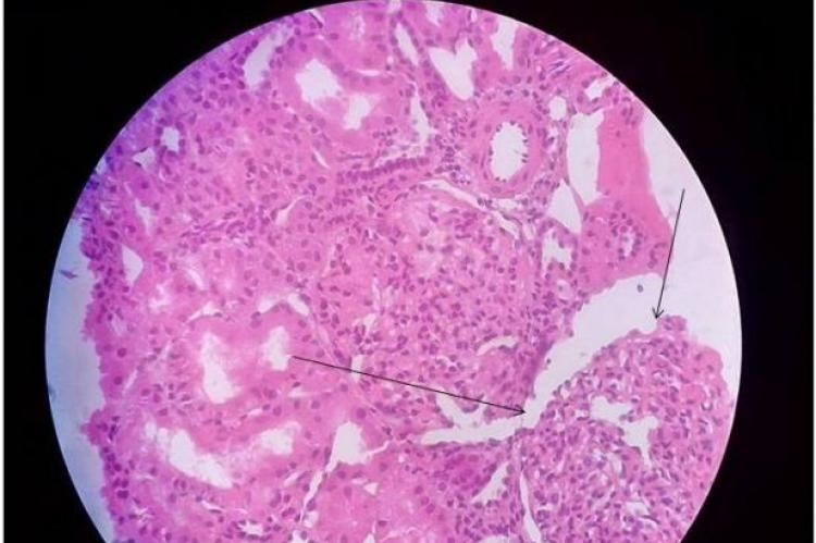 Glomeruli having mesangiocapillary proliferation with oedematous tubules filled with proteinaceous material